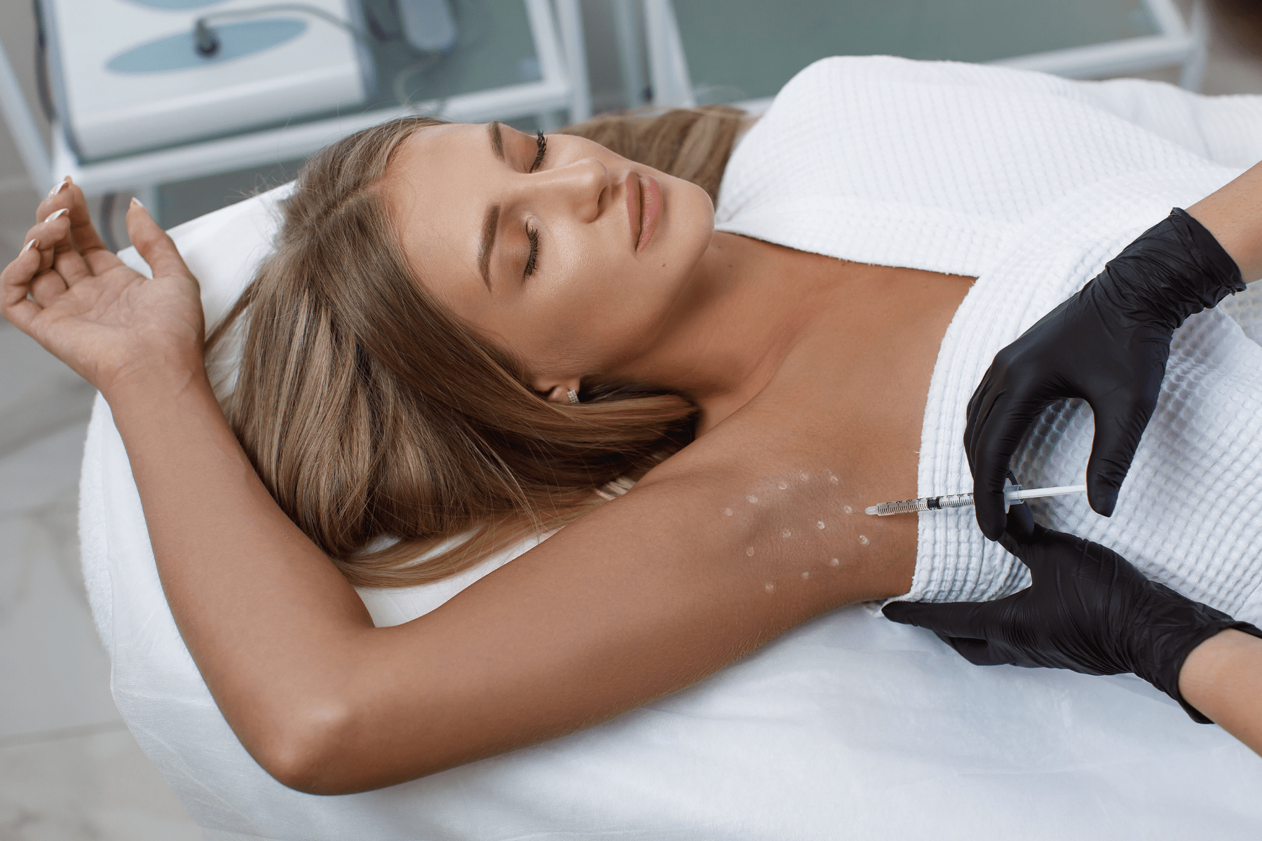 hyperhidrosis treatment bebington